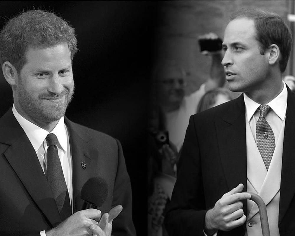 prince harry and william dental braces
