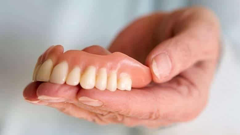 Dental Implants Vs Dentures: Which is Best?
