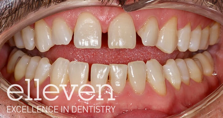 Spaced Teeth - Elleven Dental