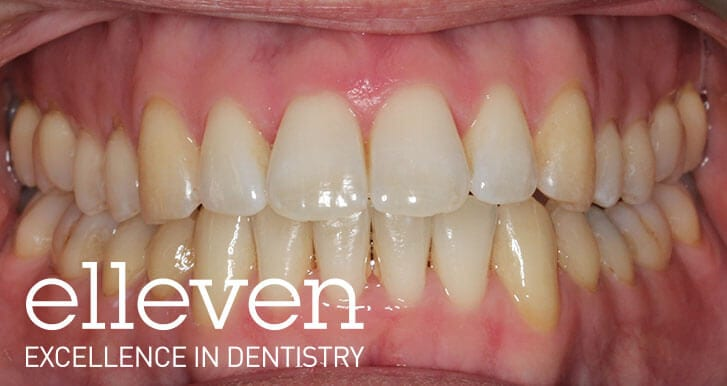 Invisalign - Elleven Dental