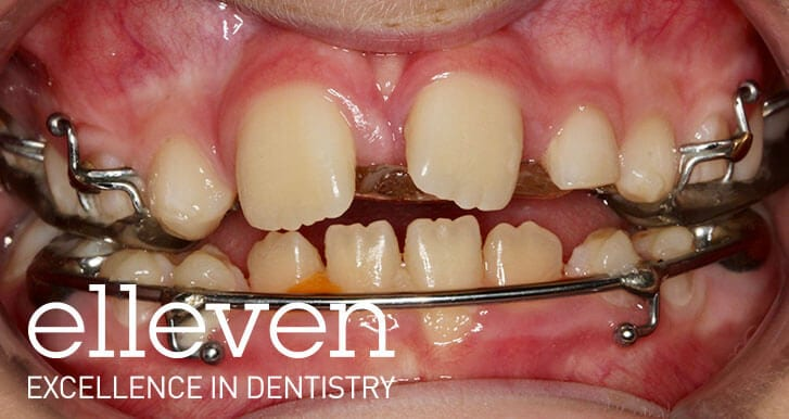 Missing Teeth - Elleven Dental