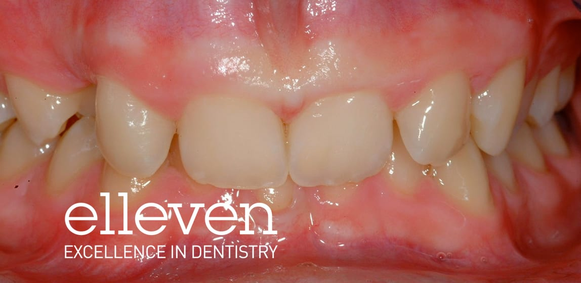 Deep Bite - Elleven Dental