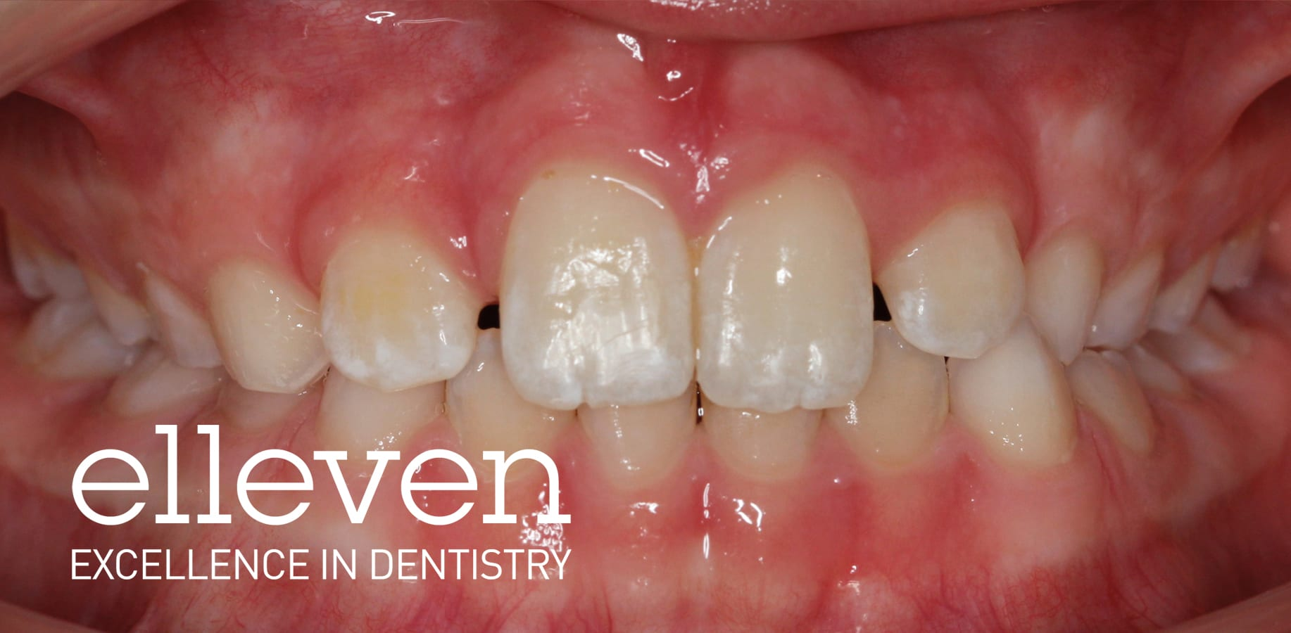 Early Treatment - Elleven Dental