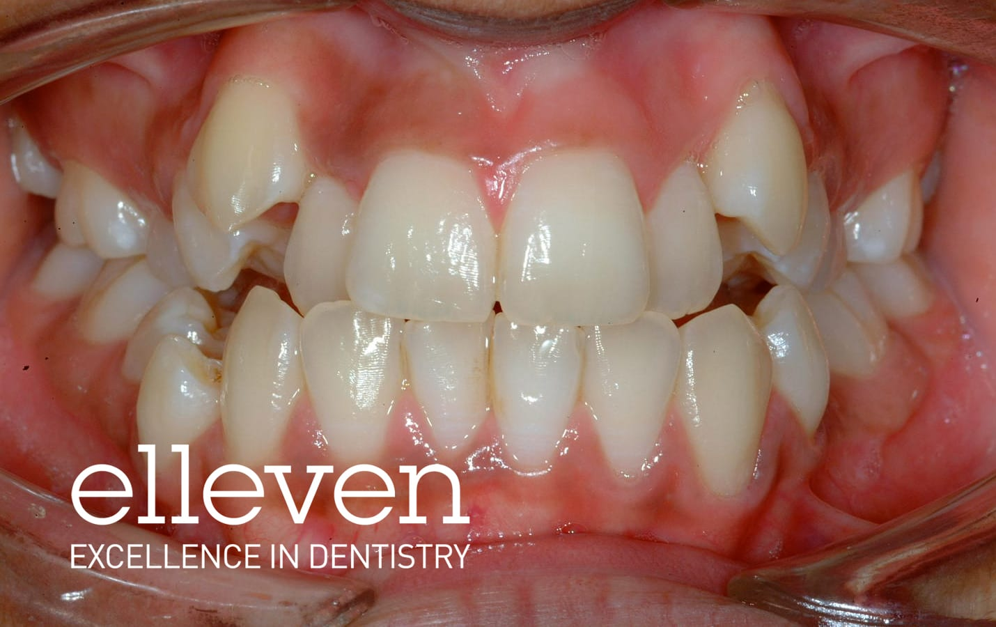 Severe Crowding - Elleven Dental