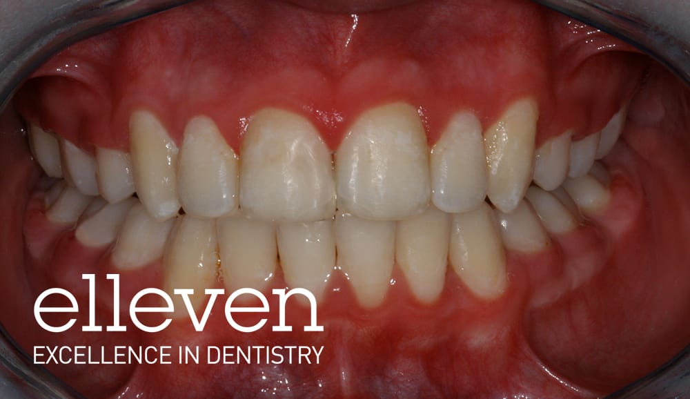 Traumatised Teeth - Elleven Dental