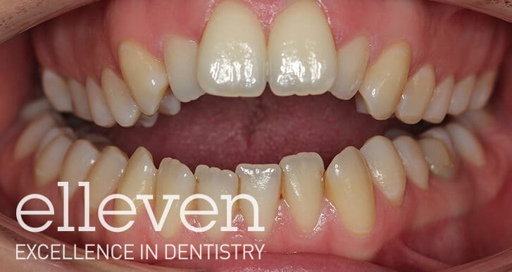 Open Bite - Elleven Dental