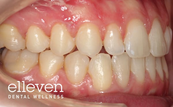 Jaw Surgery and Orthodontics