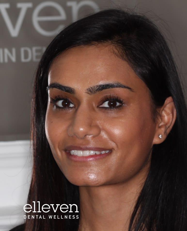 https://ellevendental.com/wp-content/uploads/Bio_Nishma_Patel-1.jpg