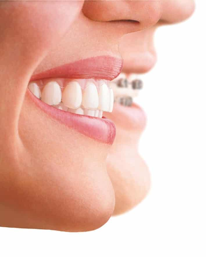 Should I get my teeth straightened?