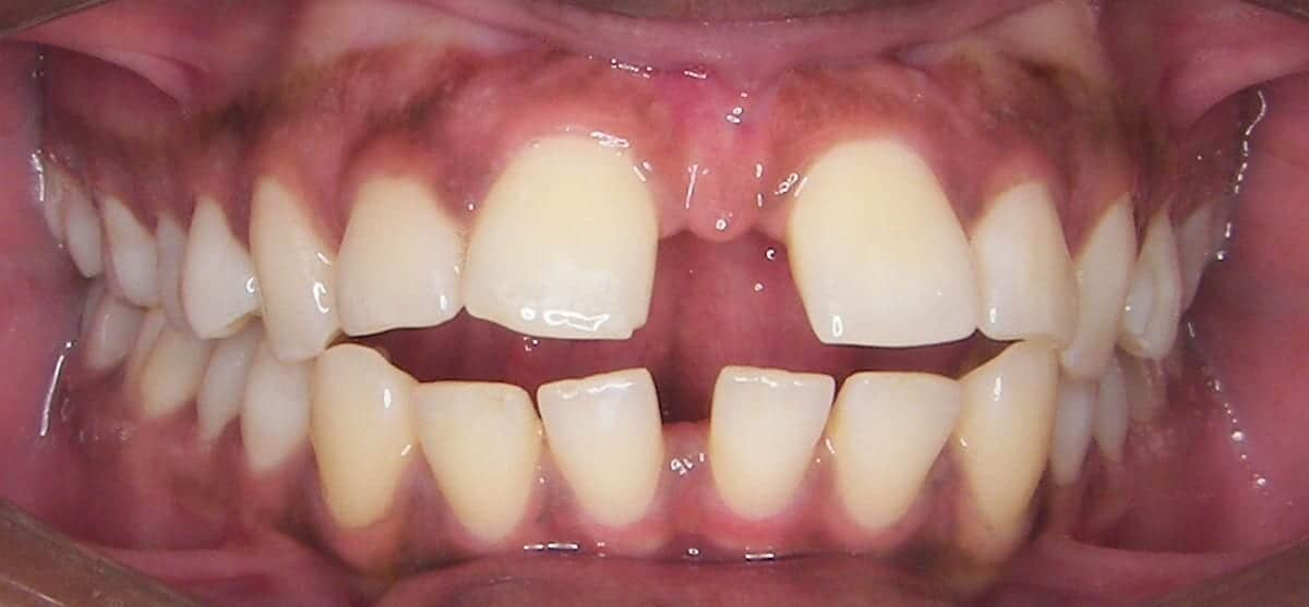 What age should my child get braces?
