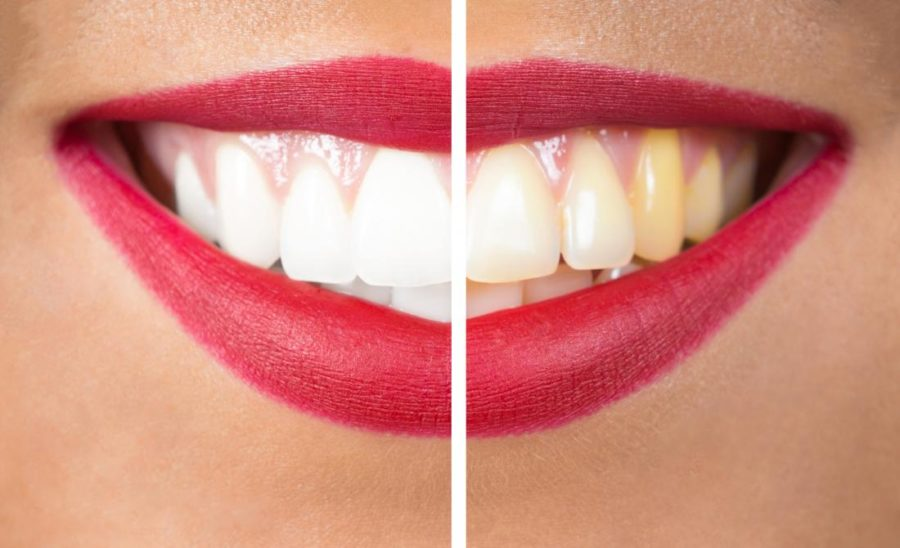 5 WAYS TO PREVENT YOUR TEETH FROM TURNING YELLOW REVEALED