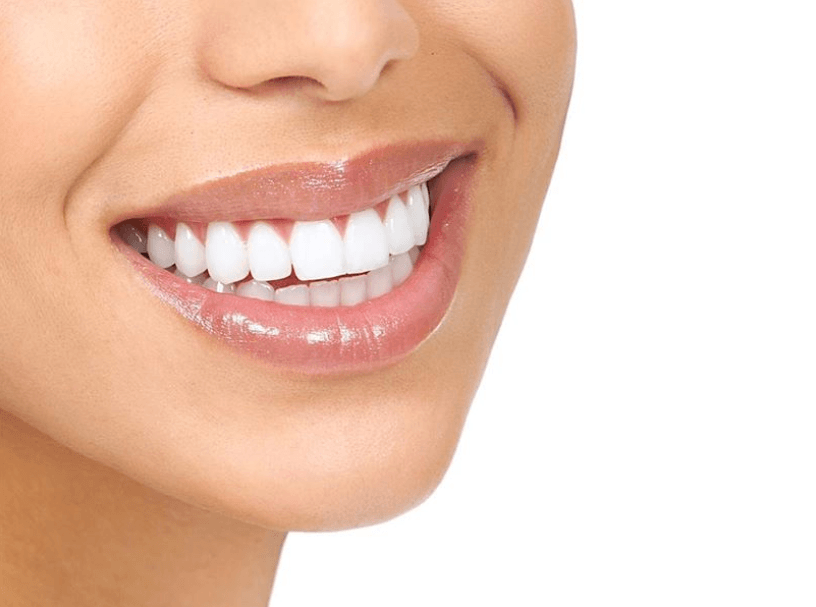 Considering removable Invisalign braces? Here's what you need to know…